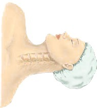 Anterior Cervical Discectomy at Advanced Spine Institute